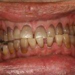 Как эффективно убрать налет от сигарет с зубов в домашних условиях