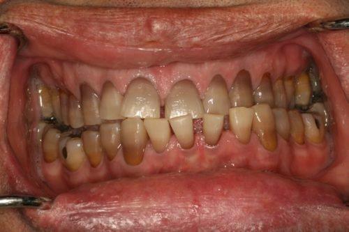Налет на зубах у курильщика