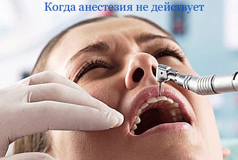 Почему анестезия не действует