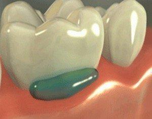 Аппликационная анестезия в стоматологии