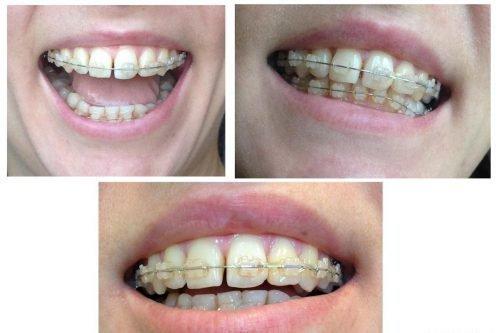Шатание зубов в брекетах случается в половине случаях