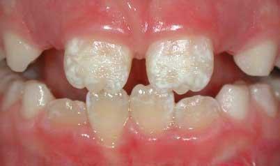 Дефекты эмали зубов - начало флюороза
