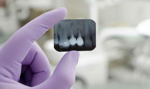 Диагностика по снимку зубов