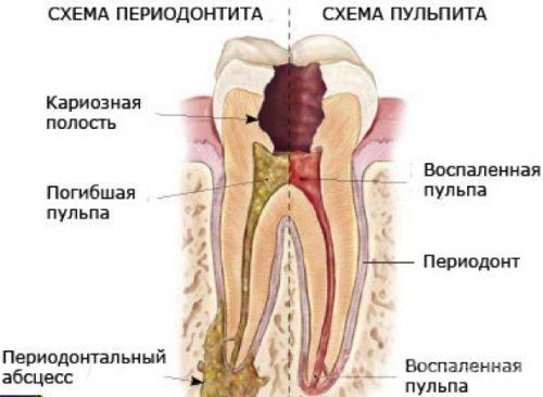 Дифференциальный диагноз пульпита от периодонтита