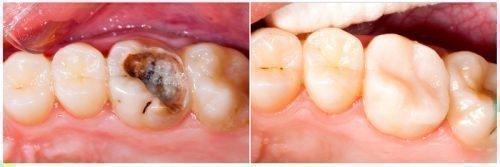 До и после лечения пульпита