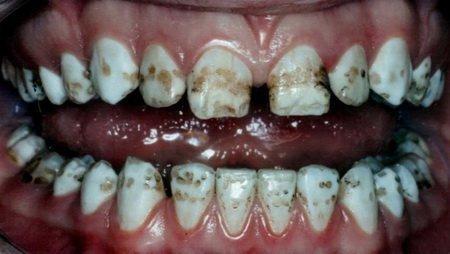 Деструктивная форма флюороза на зубах