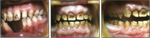 Эрозивная форма флюороза зубов