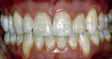 Меловидно-крапчатый флюороз зубов