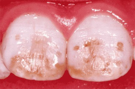 Пятнистая форма флюороза на зубах. Вторая стадия