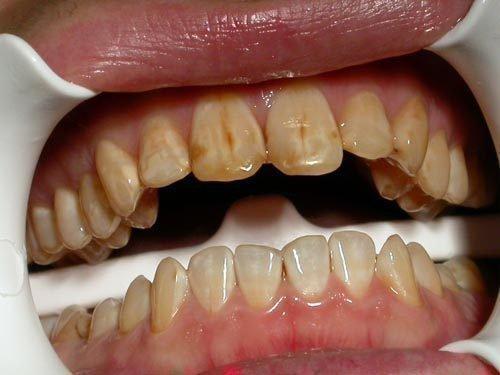 Штриховая форма флюороза на зубах
