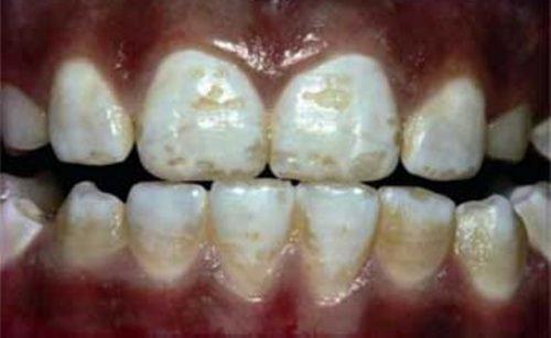 Флюороз зубной эмали