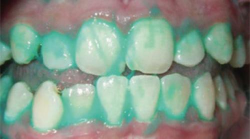 Фторирование зубов у ребенка