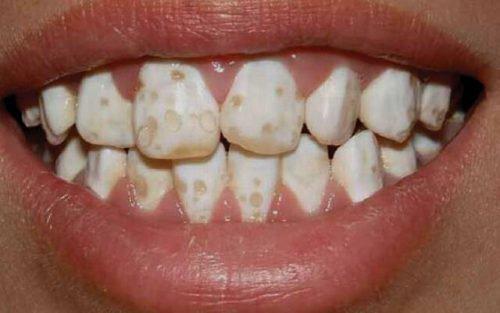 Пятнистая гипоплазия зубов