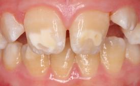 Причины белых пятен на зубах у ребенка