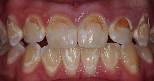 Разрушение эмали зубов в виде желтых пятен