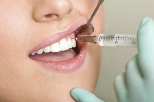 Инъекционное обезболивание зубов
