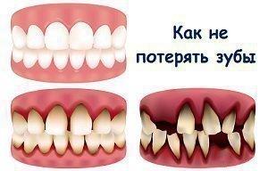 Как не потерять зубы - совета