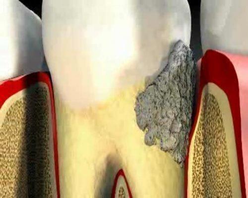 Кариес корня зуба незаметен до начала боли - схема