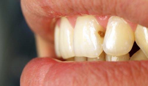 Кариес на второй стадии на передних зубах