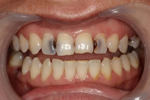 Средний кариес на зубах