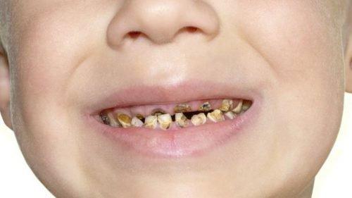 Кариес зубов в запущенной форме