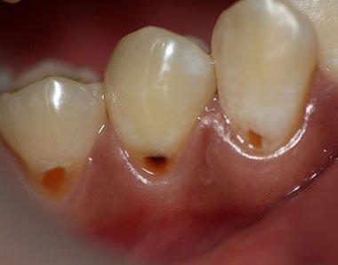 Клиновидный кариес на зубах