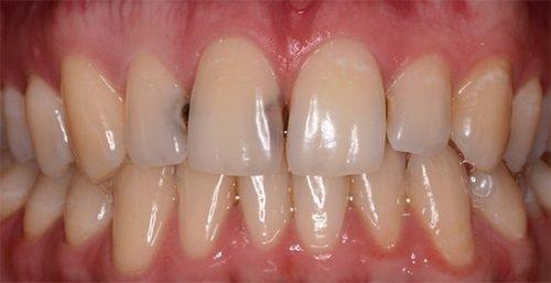 Контактный кариес на передних зубах