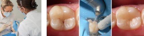 Зуб до и после лечения лазером