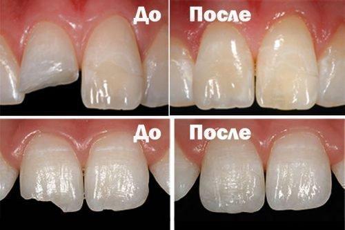 Лечение сколов зубов