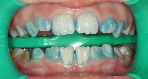 Маркировка налета на зубах