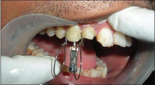 Накладывание шины на зуба
