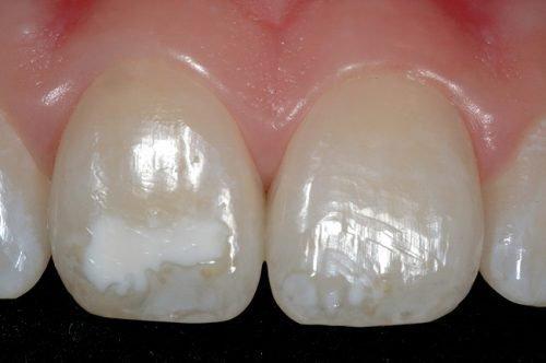 Очаговая гипоплазия на зубах