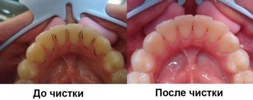 Очистка от зубного камня