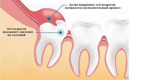 Схема образования капюшона над зубом