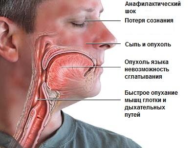 Осложнения анестезии в стоматологии