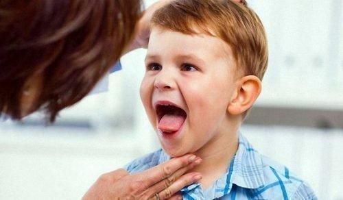 Осмотр языка врачом