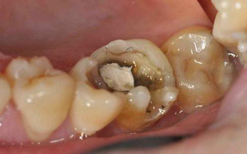 Острый пульпит зуба