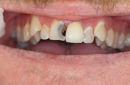 Передний зуб с острым пульпитом
