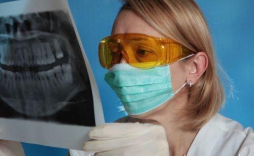 Панорамный снимок челюстей