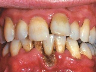 Пародонтоз - зубы плохо держатся в десне