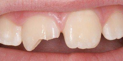 Скалывание коронки зуба