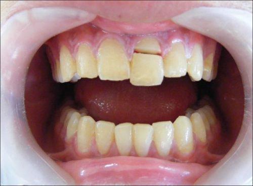Переломпереднего зуба
