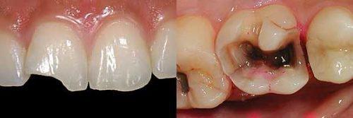 Переломы зубов разного вида