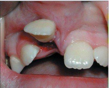 Полный вывих зуба у ребенка