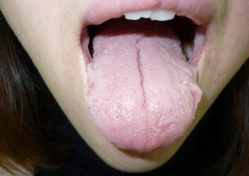 Трещина на языке у подростка