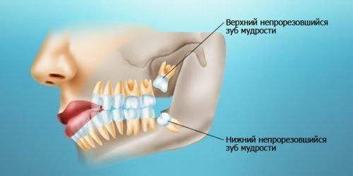 Неправильный роль моляров и давление на соседние зубы