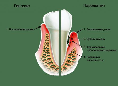 Причина шатания - пародонтит зубов