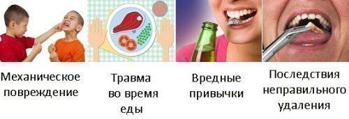 Основные ричины вывихов зубов