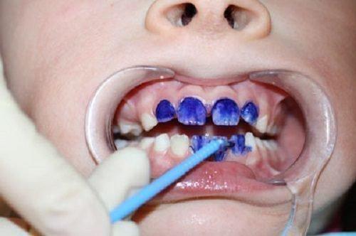Серебрение зубов ребенку