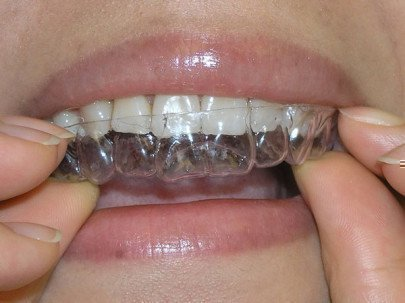 Прозрачные ретейнеры на зубы